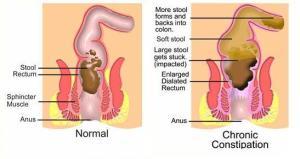 constipation diagram